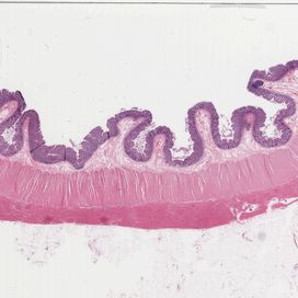 Colon Histo slide