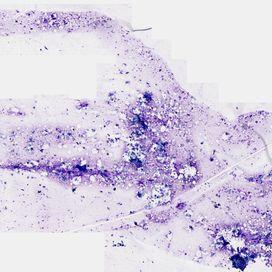 Intradermal nevus. Cytology