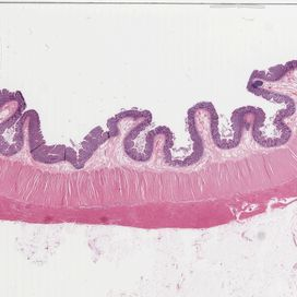 Colon wall longitudinal section