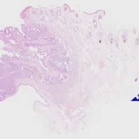 Basal cell carcinoma. Histology