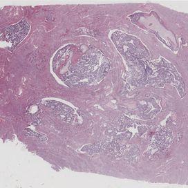 Schwangerschaftsbezogene Trophoblasterkrankungen