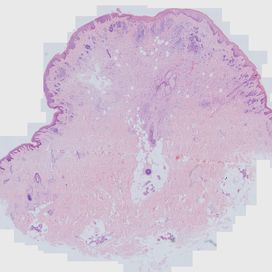 Intradermal nevus. Histology