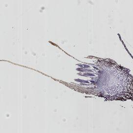 Moss archaegonium