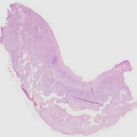 Chicken skin. Histology